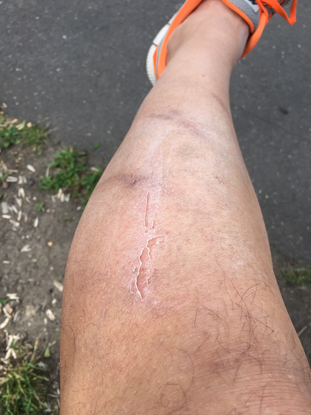 left leg hit by van